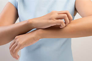 左右 対称 麻疹 蕁